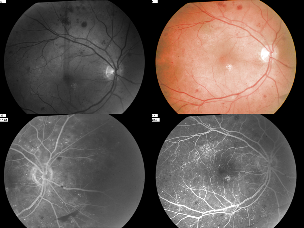 Pre-Proliferative Diabetic Retinopathy